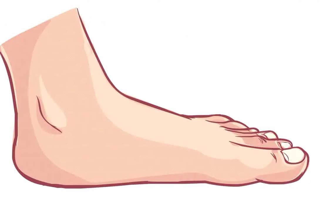 piede piatto adulto